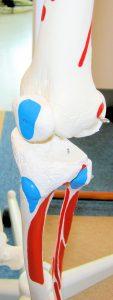 膝の痛み 変形性膝関節症