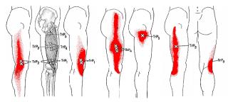 膝の痛みひざ痛名張市伊賀市鍼灸整骨院