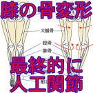 ひざ痛膝の痛み変形性膝関節症