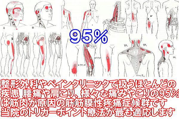 名張市 伊賀市 鍼灸 整骨院 腰痛 肩こり 交通事故治療