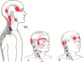美容鍼灸名張市伊賀市鍼灸整骨院腰痛肩こり交通事故