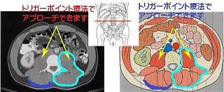 ヘルニア脊柱管狭窄腰痛名張市伊賀市鍼灸整骨院