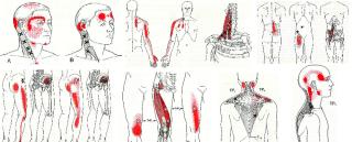 名張市整骨院腰痛肩こり伊賀市鍼灸交通事故治療膝痛頭痛